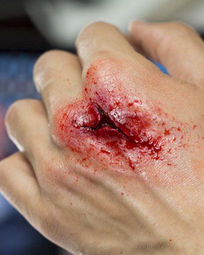 Heridas y cortes profundos